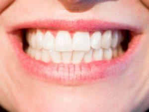 Dentist in 92117